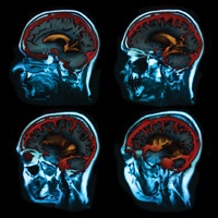 Picture of a CT scan displaying a side view of four scans of a patients brain
